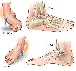 623419x150 - دانلود پاورپوینت میزان شیوع آسیبهای مچ پا و علل آن در رشته های مختلف ورزشی